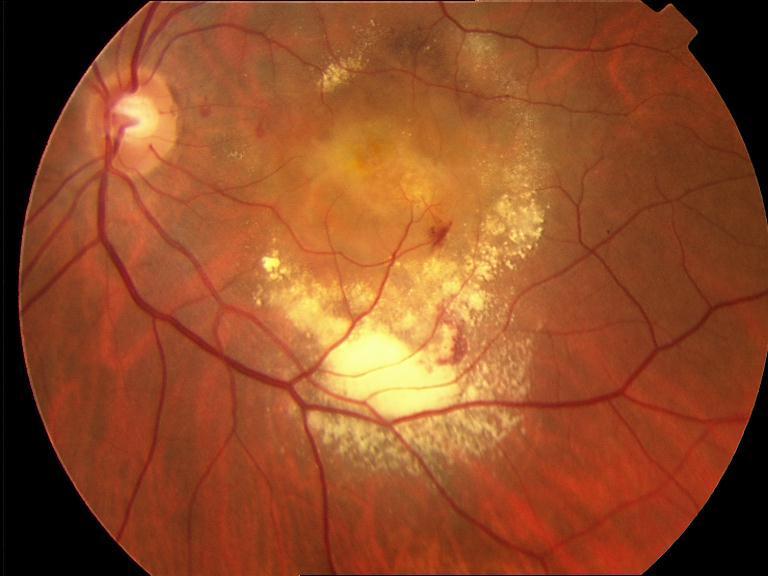 Degeneración macular asociada a la edad (DMAE) exudativa