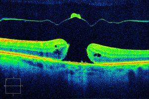Diagnostico de Agujero Macular por OTC, Clinica oftalmologica Bajo-Castro en Oviedo (Asturias)
