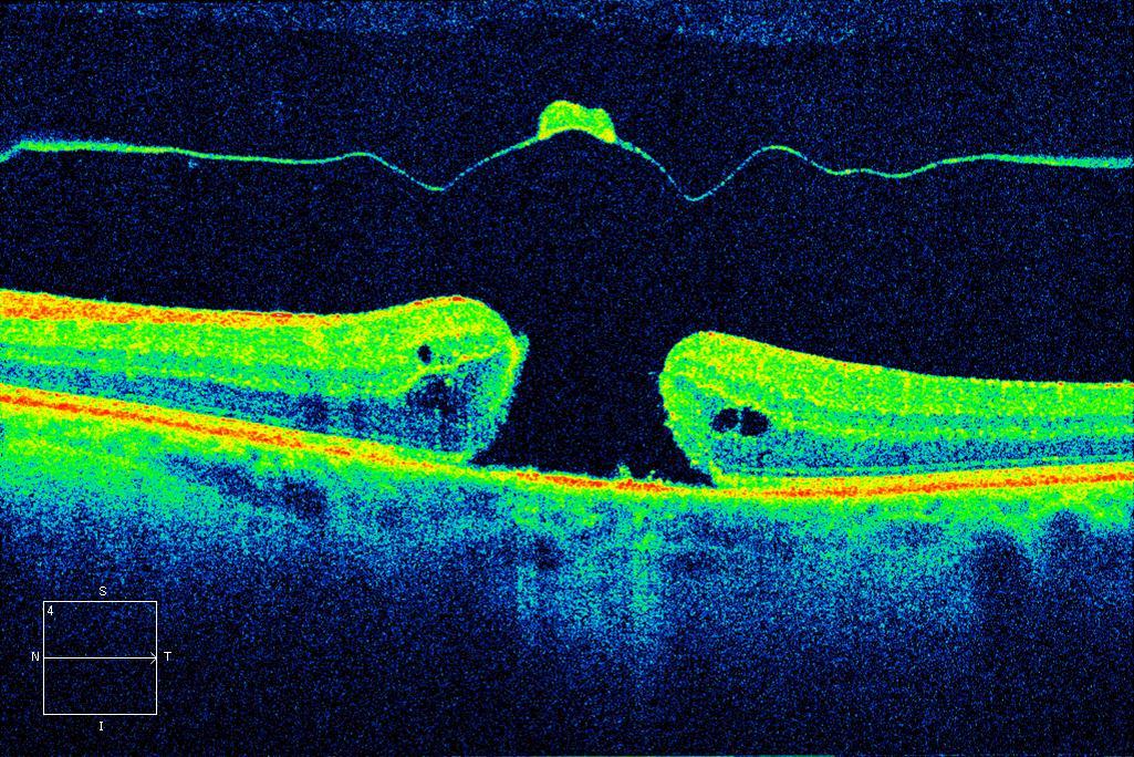 Diagnostico de Agujero Macular diagnosticada por Tomografía de Coherencia Óptica (OCT), Clinica oftalmologica Bajo-Castro en Oviedo (Asturias)