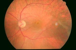 Imagen de un desprendimiento de retina (DR) de larga evolución, Clínica Oftalmológica Bajo-Castro, Oviedo, Asturias