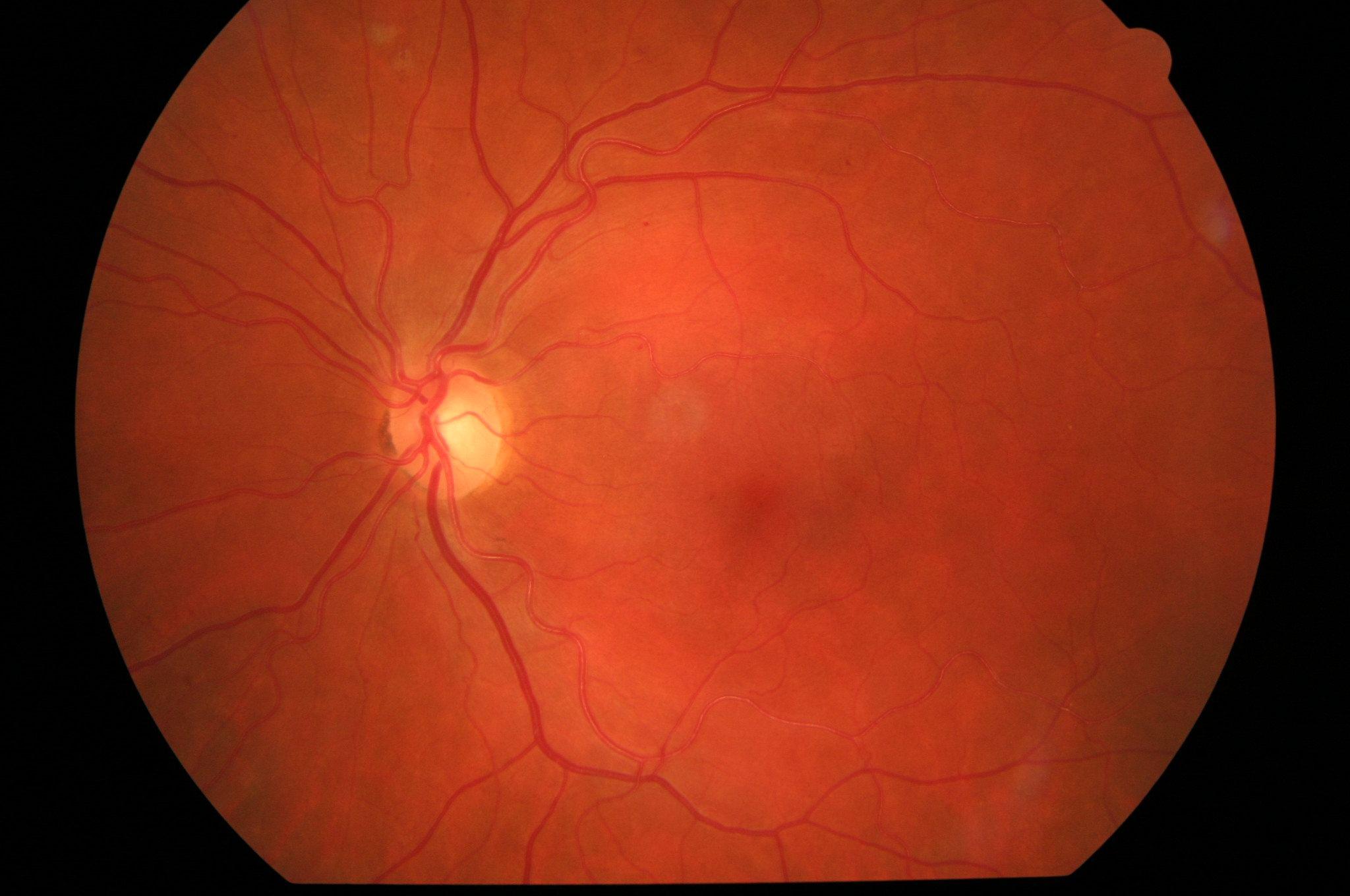 La retina y los problemas más comunes, Clinica oftalmologica Bajo-Castro en Oviedo (Asturias)