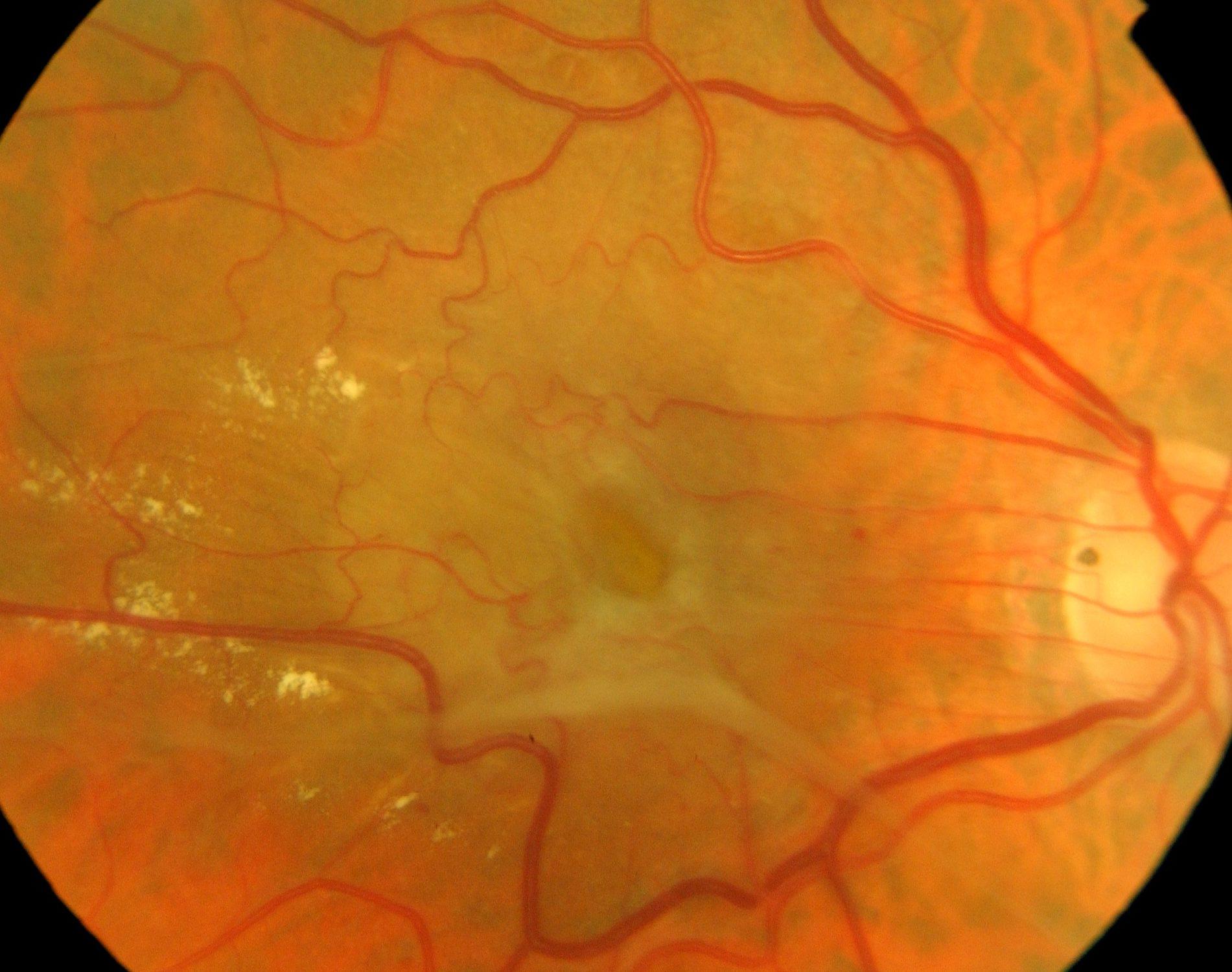 Imagen de la membrana epirretiniana macular. Clínica Oftalmológica Bajo-Castro, Oviedo (Asturias)