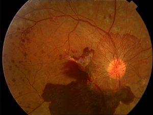 Imagen de una Retinopatía diabética, realizada por la Clínica oftalmológica Bajo-Castro en Oviedo (Asturias)
